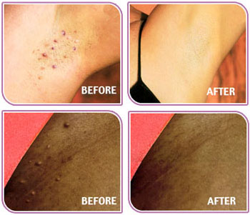 Ingrown Leg Hair Removal Products